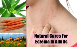 Natural Cures For Eczema In Adults