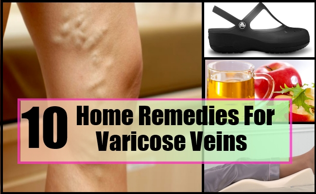 home remedy for varicose