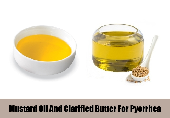 Mustard Oil And Clarified Butter For Pyorrhea