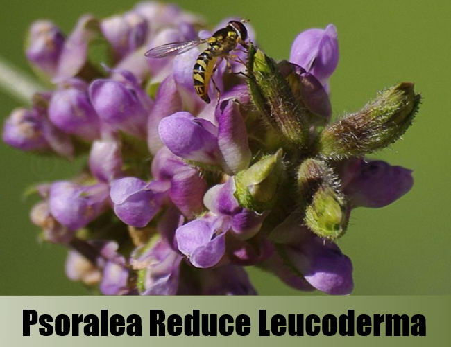 5 Effective Natural Remedies And Cures For Leucoderma - Top