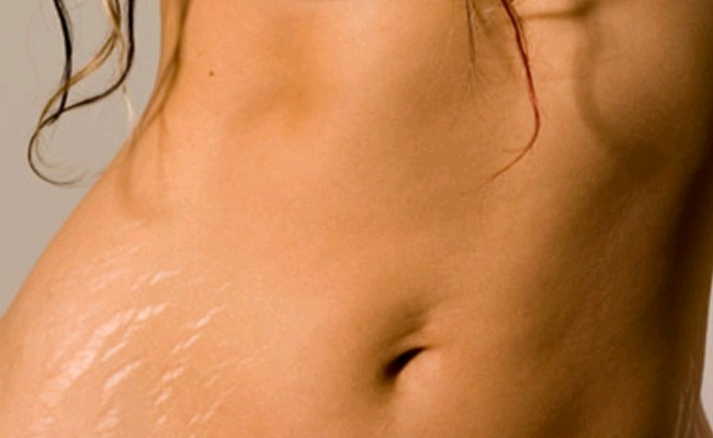 Removing Stretch Marks