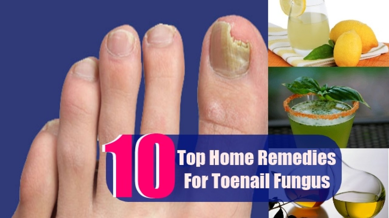 10 Top Home Remedies For Toenail Fungus | Lady Care Health