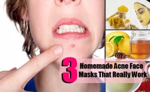 3 DIY Homemade Acne Face Masks That Really Work