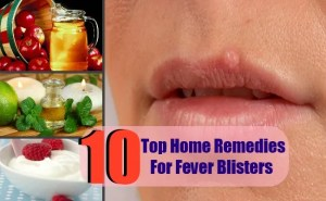 10 Effective And Easy To Use Home Remedies For Fever Blisters