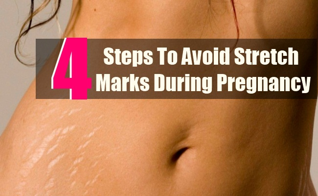4 Simple Steps To Avoid Stretch Marks During Pregnancy