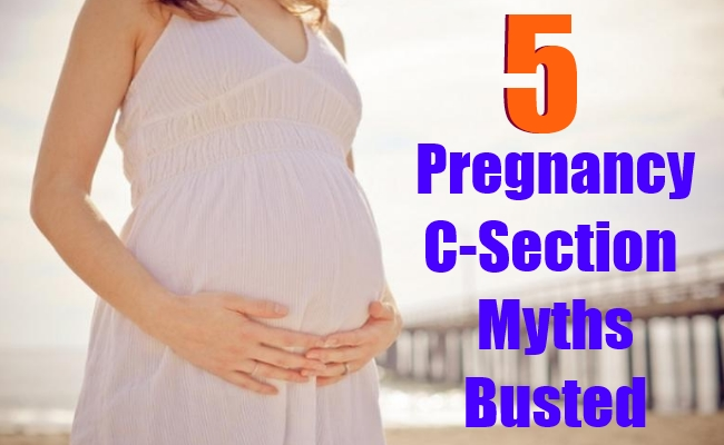 5 Pregnancy C-Section Myths Busted