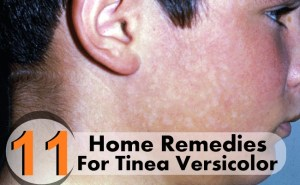 11 Home Remedies For Tinea Versicolor