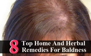 Top 8 Home And Herbal Remedies For Baldness