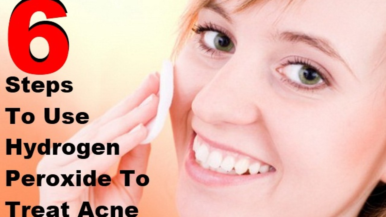 6 Simple Steps To Use Hydrogen Peroxide To Treat Acne | Lady