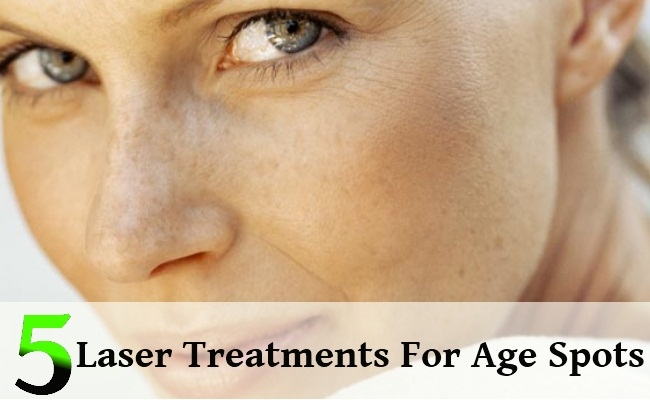 Laser Treatments For Age Spots