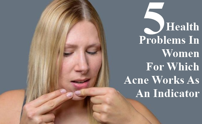 Health Problems In Women For Which Acne Works As An Indicator