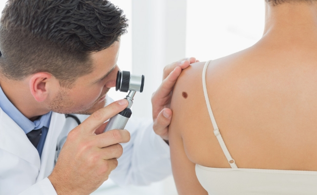 Regular Checking With Dermatologist Is Necessary