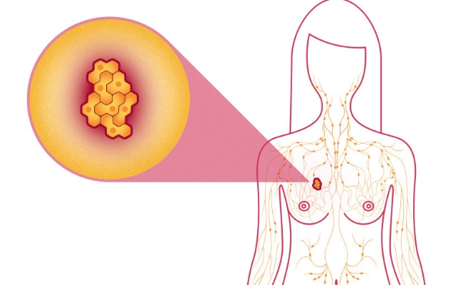 Triggers Breast Cancer Cell Death