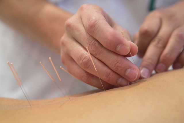 Go For Acupuncture And Physiotherapy