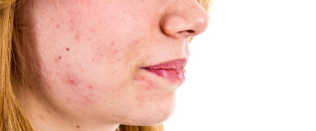 How To Get Rid Of Acne Scars Caused By Hormonal Changes ...