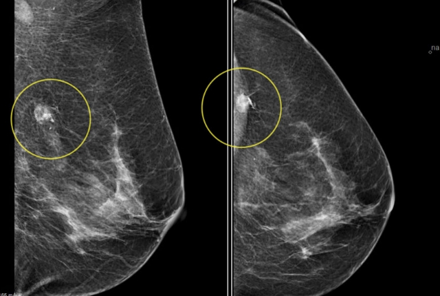 Important Tool For Detecting Breast Cancer In Aged Women