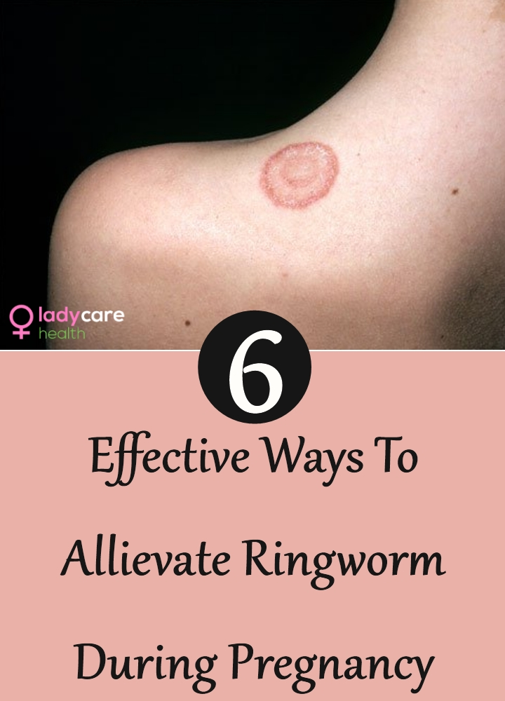 Ringworm During Pregnancy