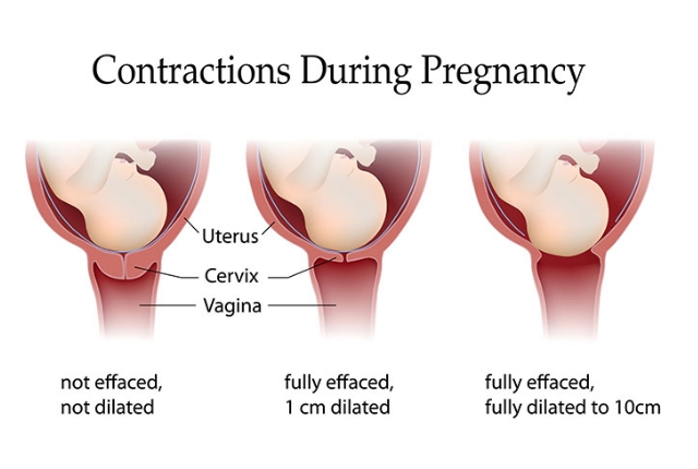 Sudden Pain During Contractions