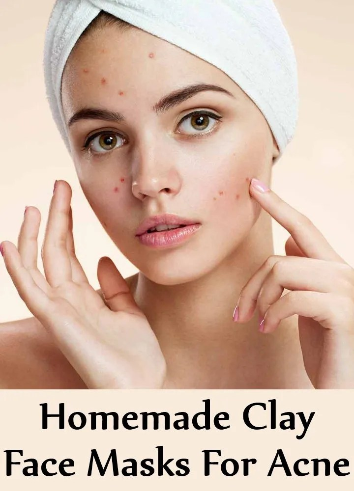 6 Homemade Clay Face Masks For Acne