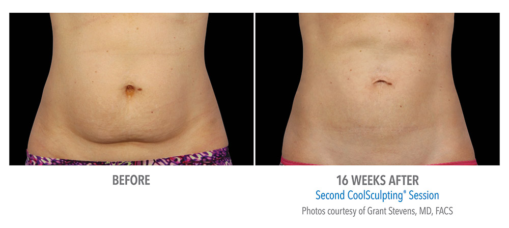 Coolsculpting claim