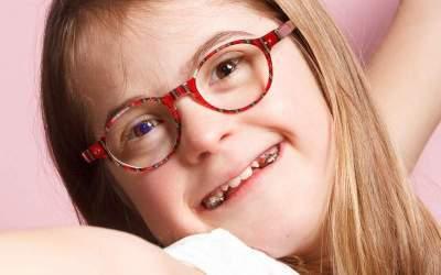 Visión y síndrome de Down