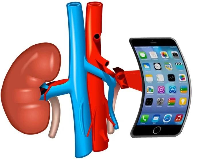 iphone por riñón