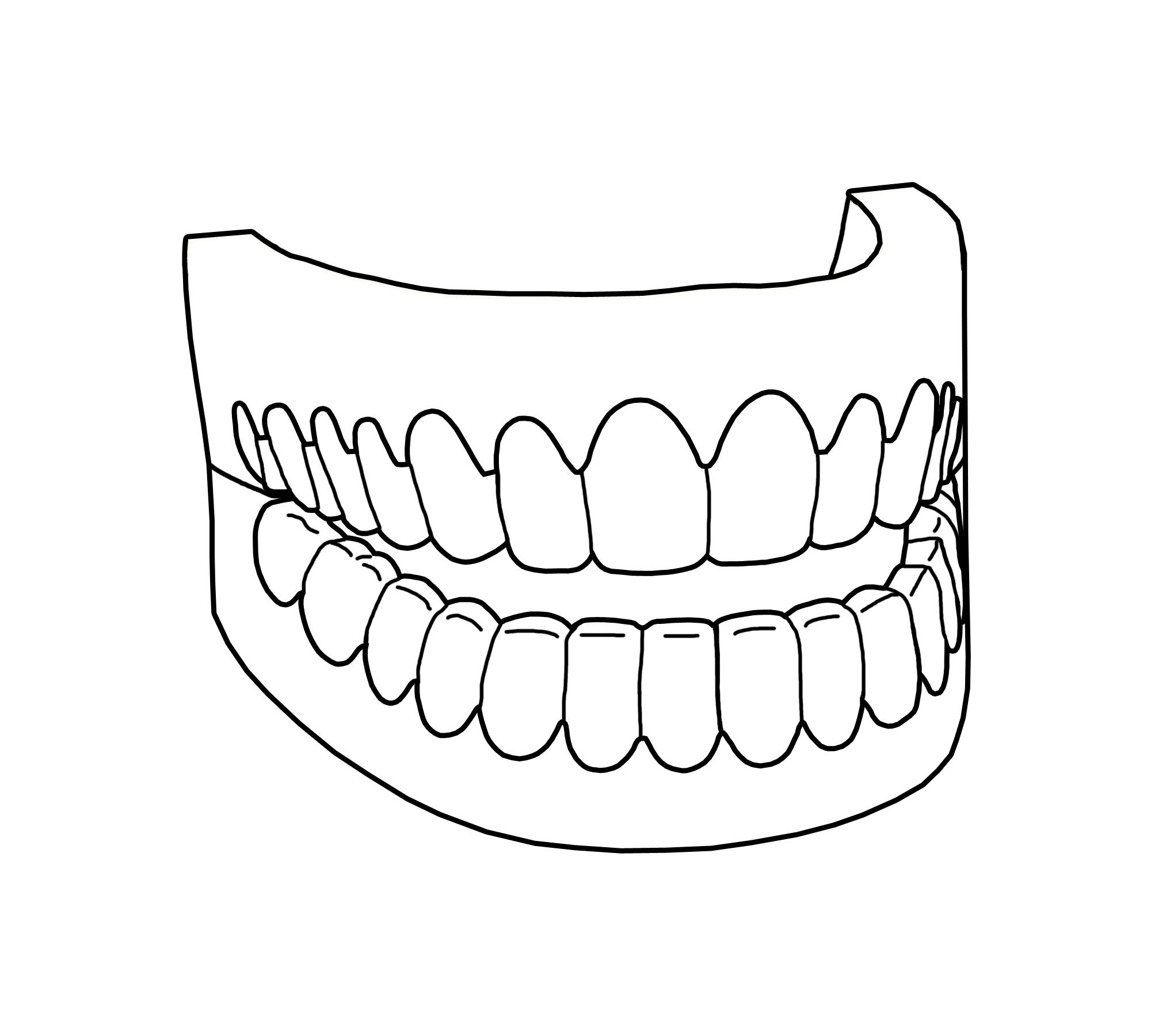 39 Zahn Bilder Zum Ausdrucken - Besten Bilder von ausmalbilder