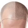 Scalp Micro Pigmentation Smp Gl Perrault Md Hair