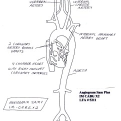 Coronary Arteries Diagram Branches Audi A6 C5 Wiring Angiogram Sam Plus Im Cabg X2 With Two Artery