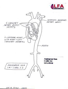 Angiogram Sam IM CABG X3 Graft Anatomical Training Model