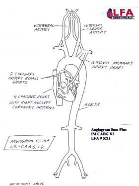 Angiogram Sam Plus IM CABG X2 with two Coronary Artery