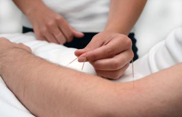 basingstoke-acupunture-treatment