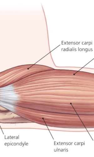 Tennis Elbow Lakky Physiotherapy