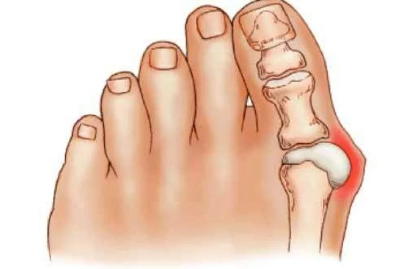 dolor dedo gordo del pie causas