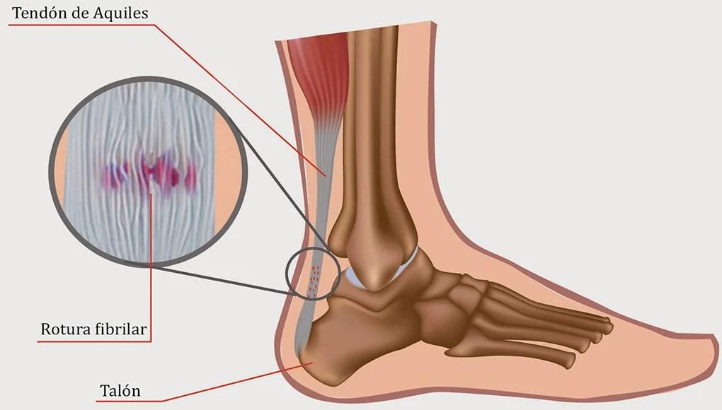 posibles causas del dolor de talones