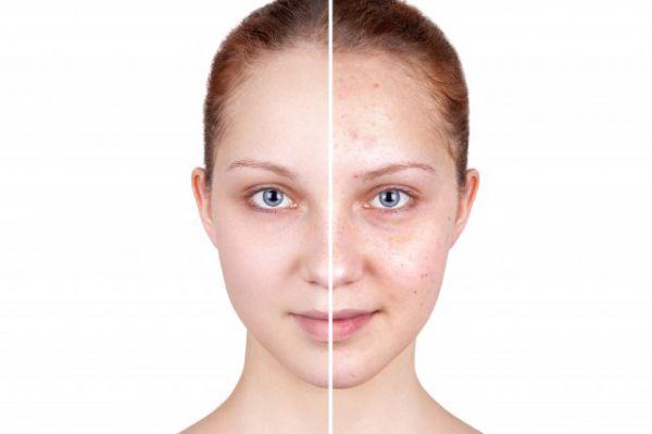 正常人臉長多少厘米 判斷自己臉型很簡單 - 化妝技巧 - 辣媽女性網