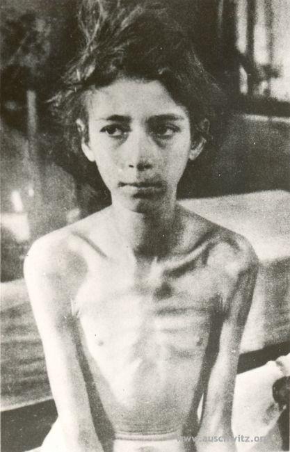 Ragazza ungherese di 10 anni, liberata a Birkenau dall'Armata ROssa il 27 gennaio 1945 - Auschwitz Birkenau Memorial and Museum - www.auschwitz.org