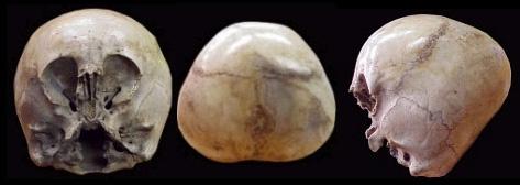 El cráneo del niño de las estrellas