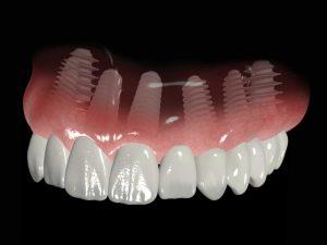Rehabilitación oral, más allá de la estética 9 14 julio, 2020