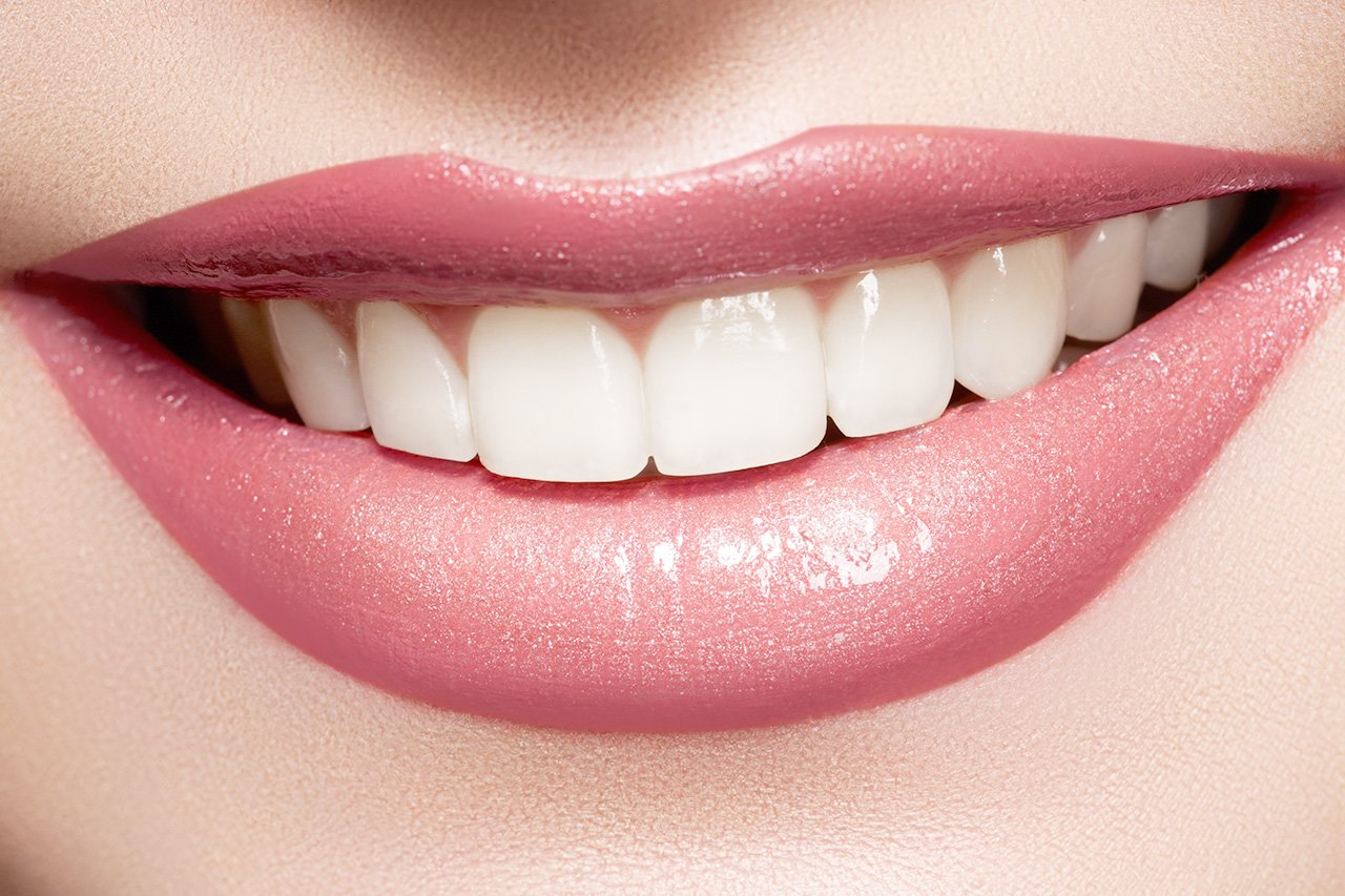12 Benefits of Professional Teeth Whitening