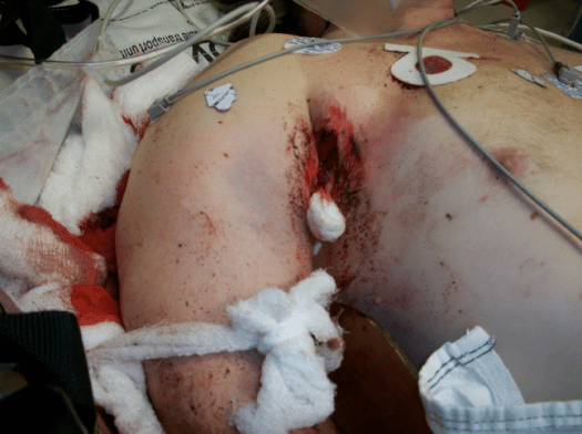 David Barry Hanley Bullet Wound