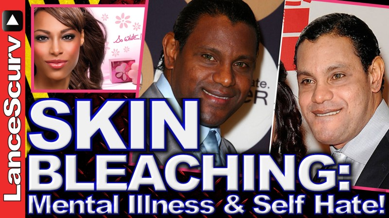 Skin Bleaching: Mental Illness & Self Hate! - The LanceScurv Show
