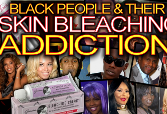 Black People & Their Skin Bleaching Addiction! -The LanceScurv Show