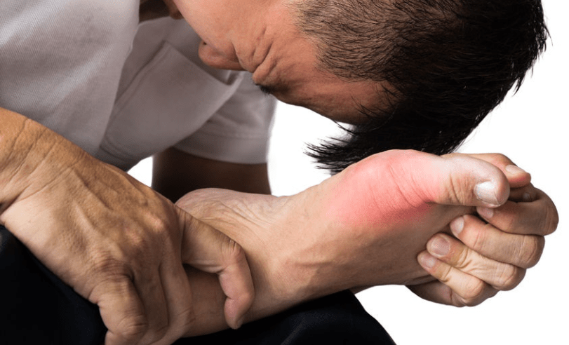 gout-physio-treatment