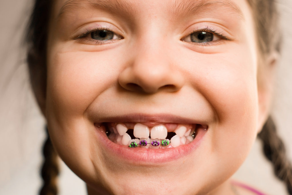 How to Choose Colors for Braces   Knoxville Braces   Dr ...