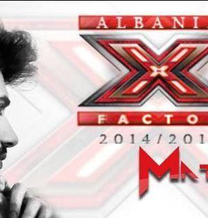 x-factor-albania-matteo