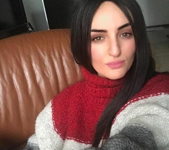Le stupide critiche su Arisa con l'apparecchio a Sanremo 2018