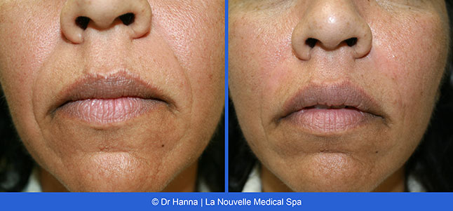 Radiesse and Juvederm Before and After Photos | Ventura