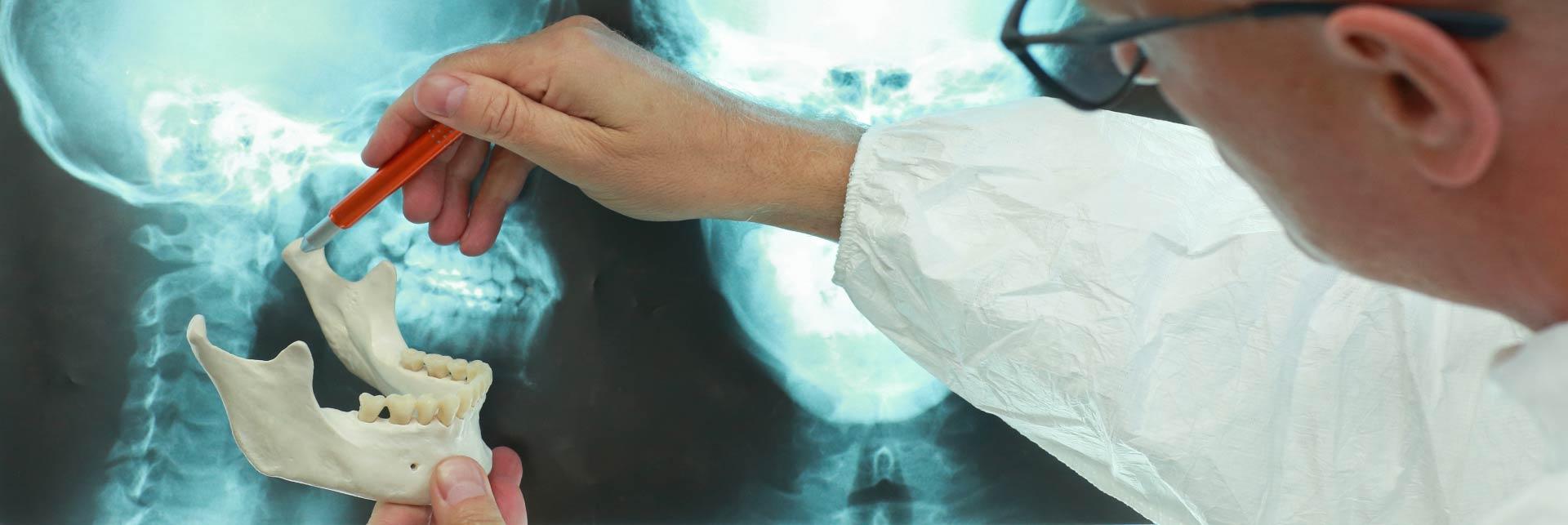 TMJ Surgery - Lanzi Burke Oral Surgery