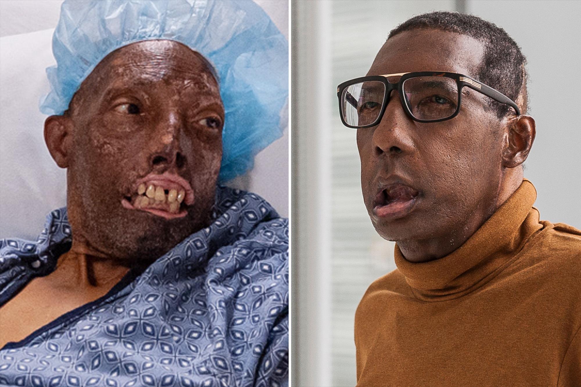 Estados Unidos practica primer trasplante de cara a un afroamericano